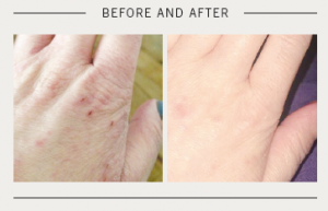 Omega Before and After