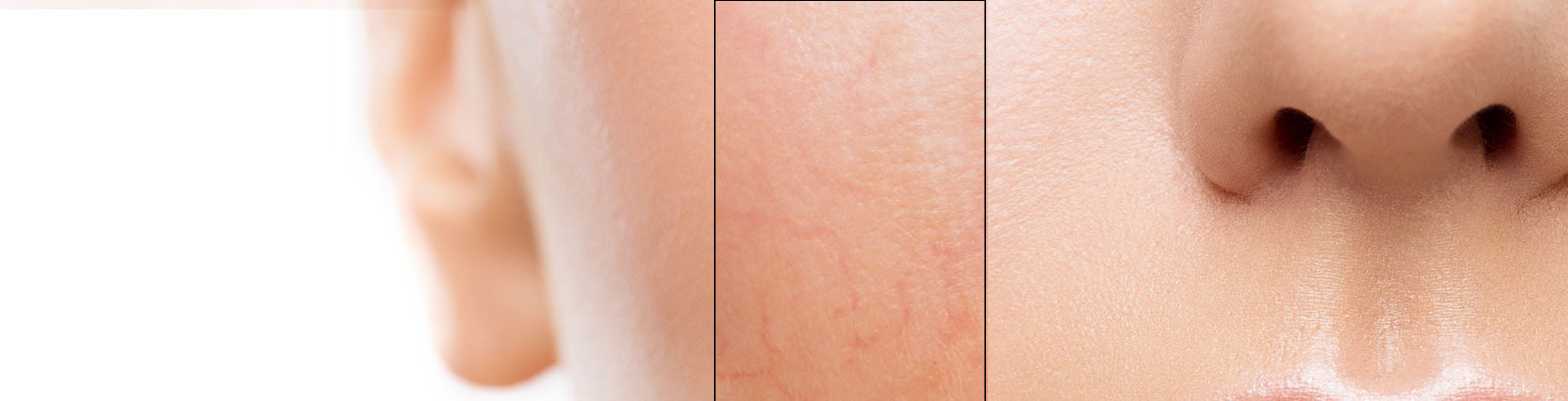 rosacea treatment in cork